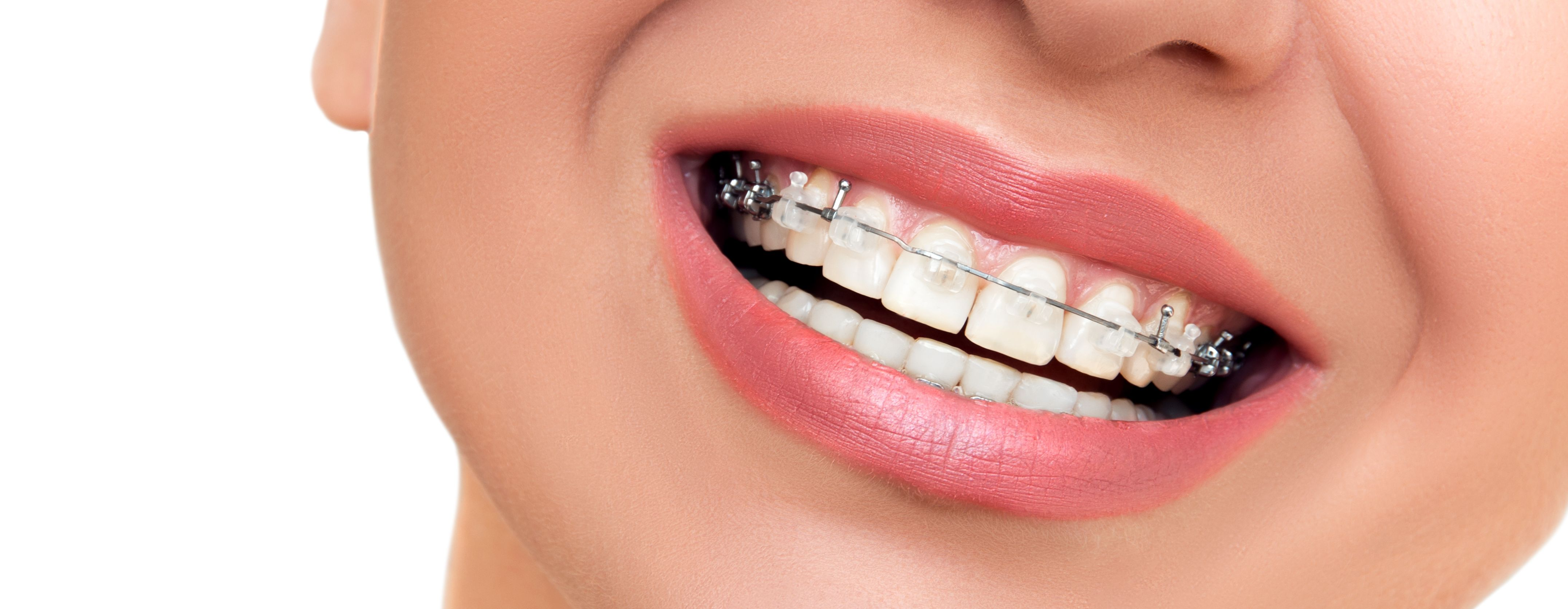 Clear-Braces-3_cropped